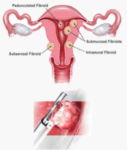 fibroid polyp removal gyn doctor nyc