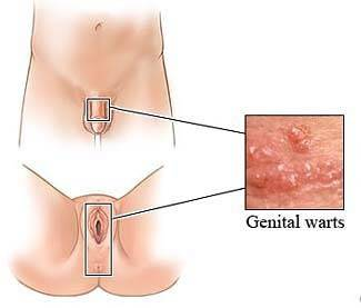 What causes warts in vagina