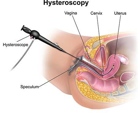 Uterine polypectomy and sex intercourse