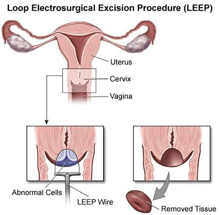 hpv treatment leep electrosurgical excision procedure