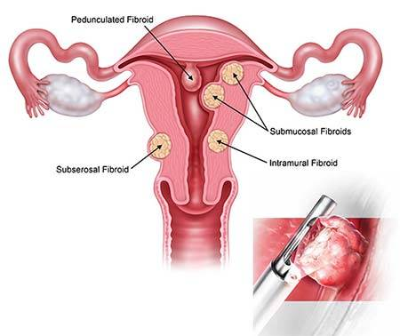 MyoSure Fibroid Polyp Removal