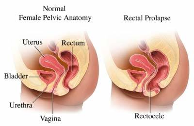 Rectocele (Posterior Prolapse)