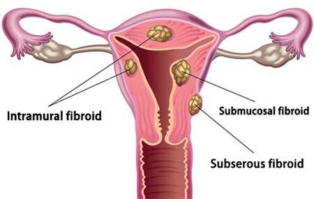 Uterine Fibroids | Enlarged Uterus