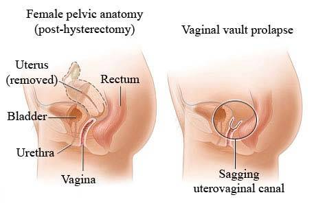 vaginal-vault-suspension