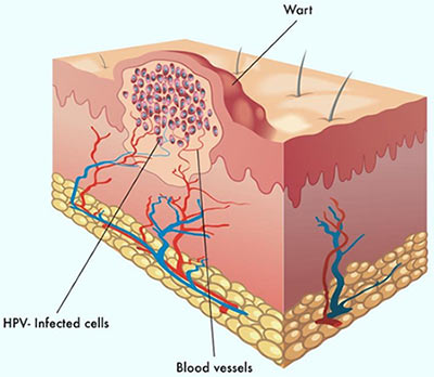nyc genital warts removal specialist doctor
