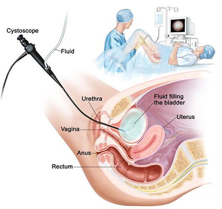 Cystoscopy Procedure Gynecologist NYC