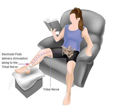 Posterior tibial nerve stimulation (PTNS)